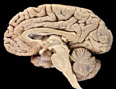 brain-cut